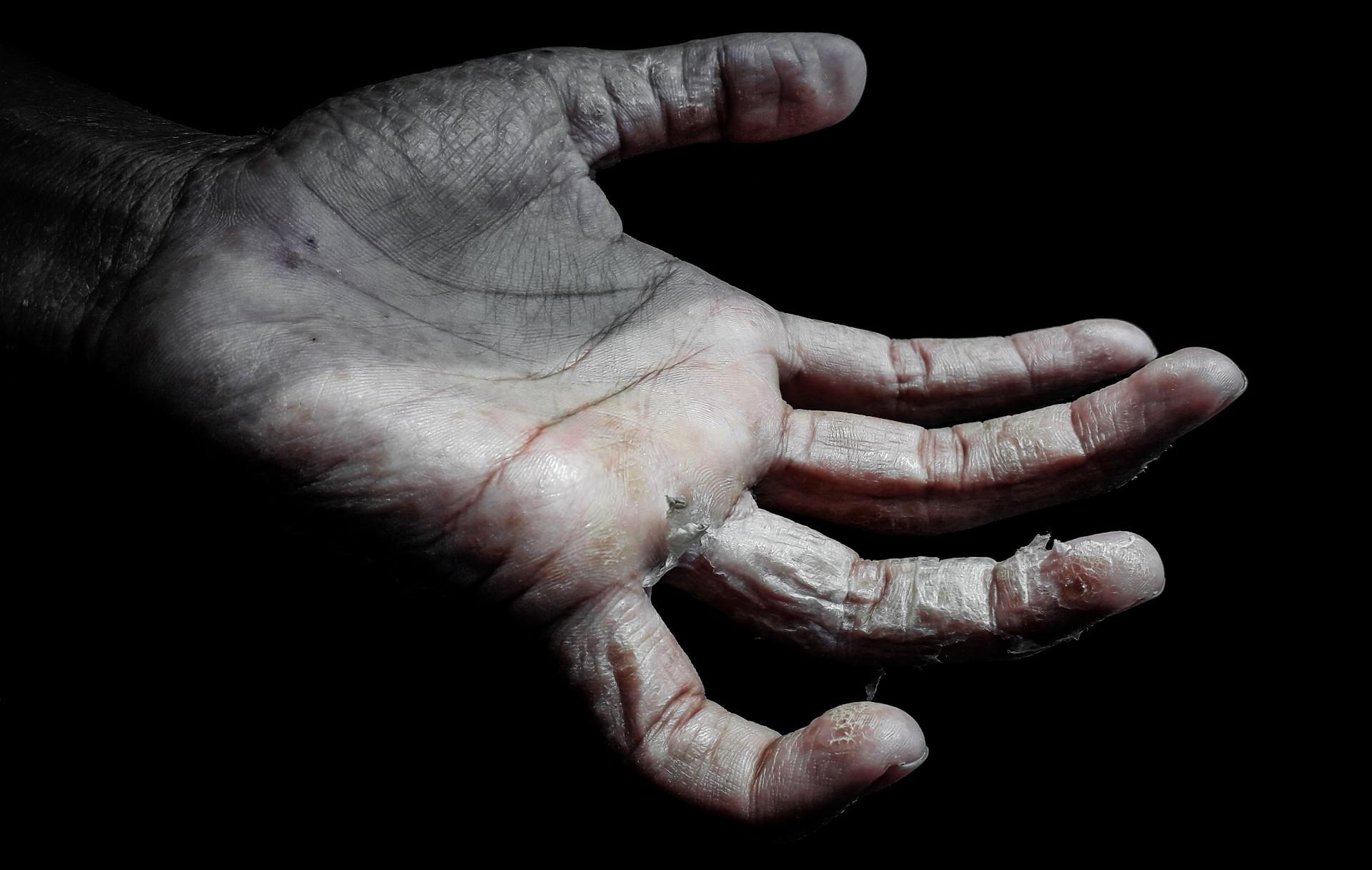 6 продуктов, которые делают кожу сухой
